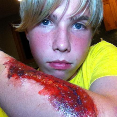 "Kyle's ""injury"""