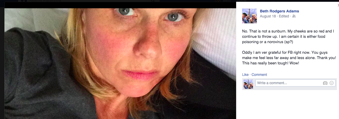 """Barfing in Amsterdam: The """"allergic"""" food poisoning caused my face to get really red and puffy."""