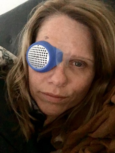 "Me, post surgery, wearing my ""Hannibal Lecter"" Eye Mask, Salt Lake City, Utah"